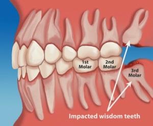 Posisi gigi MF yang salah di gigi molar 3 (firdaus45.com)