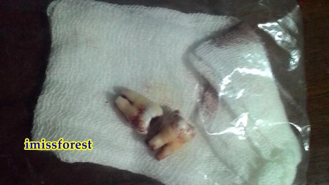 Ini nih gigi MF, diambil gambarnya setelah beberapa minggu (dokumentasi pribadi, taken by ASUS Zenfone 4)